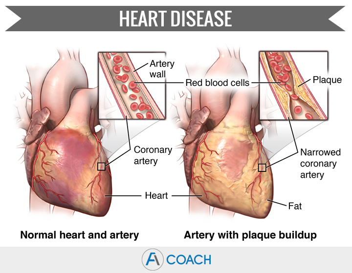 heart disease fatigue